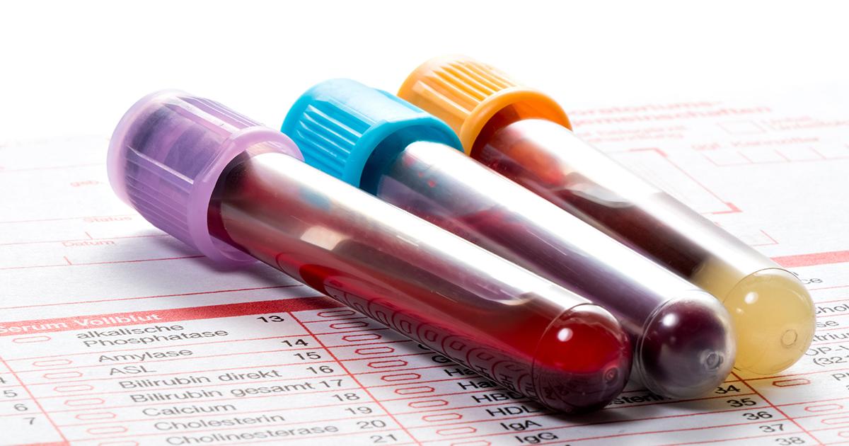 Analyse-sang-génétique